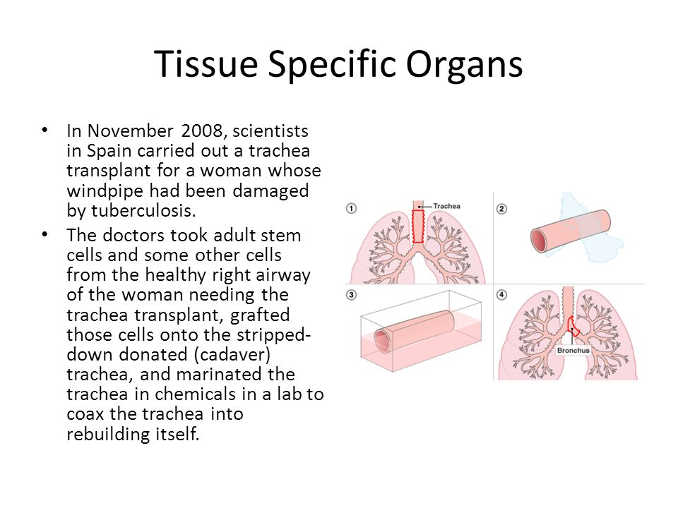 Tissue Specific Organs In November 2008, scientists in Spain carried out a trachea transplant for a woman whose windpipe had been damaged by tuberculo