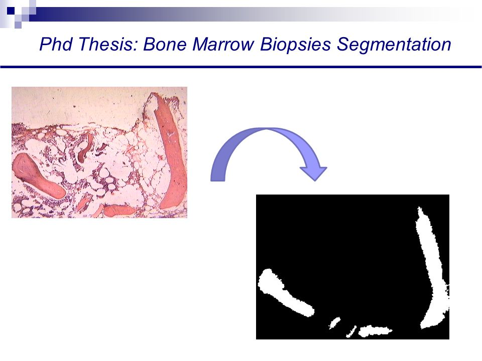 Phd Thesis: Bone Marrow Biopsies Segmentation