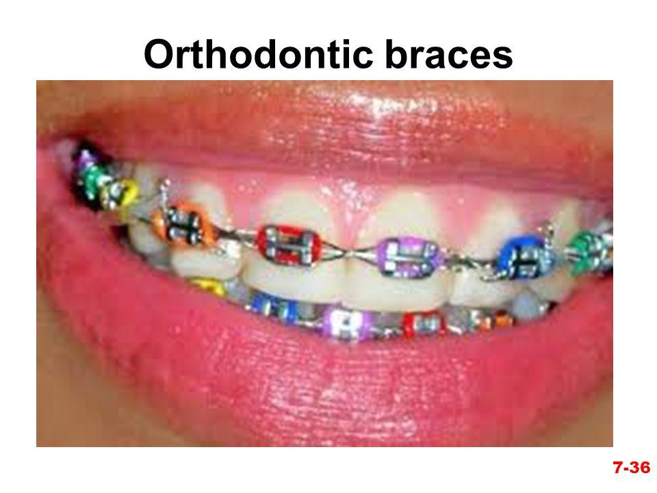 Orthodontic braces 7-36