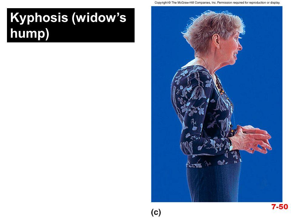 Kyphosis (widow's hump) 7-50