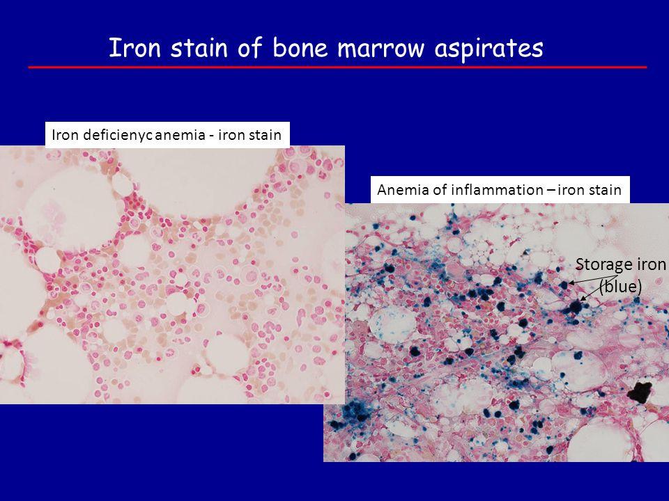 Storage iron (blue) Iron deficienyc anemia - iron stain Anemia of inflammation – iron stain Iron stain of bone marrow aspirates