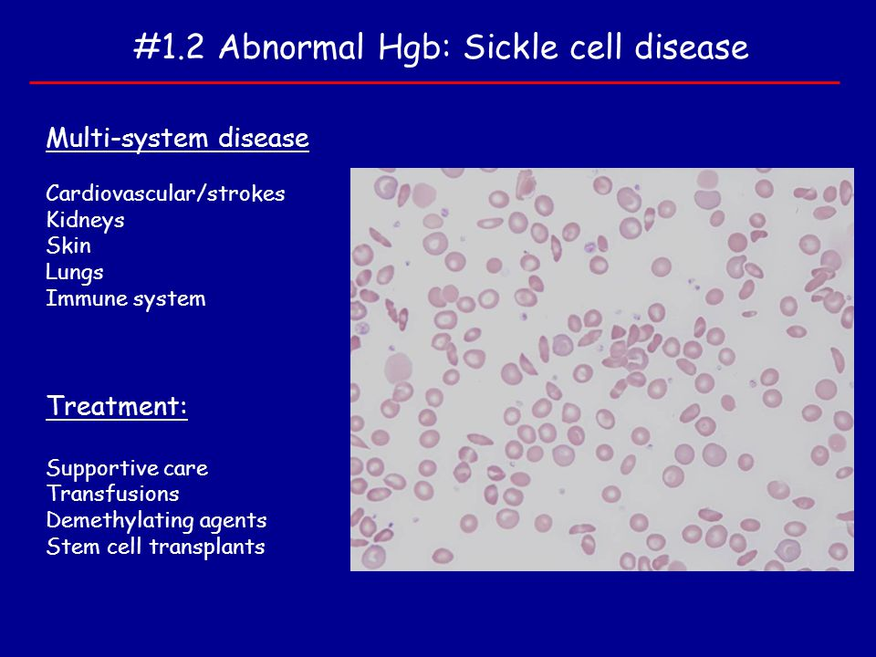 #1.2 Abnormal Hgb: Sickle cell disease Multi-system disease Cardiovascular/strokes Kidneys Skin Lungs Immune system Treatment: Supportive care Transfu
