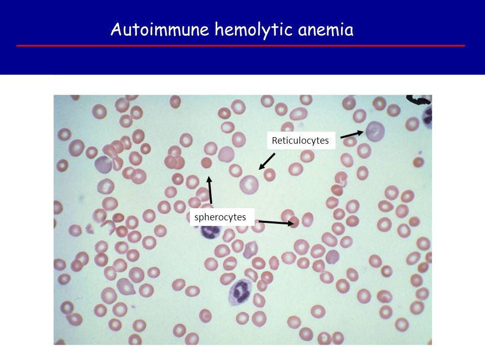 Autoimmune hemolytic anemia spherocytes Reticulocytes