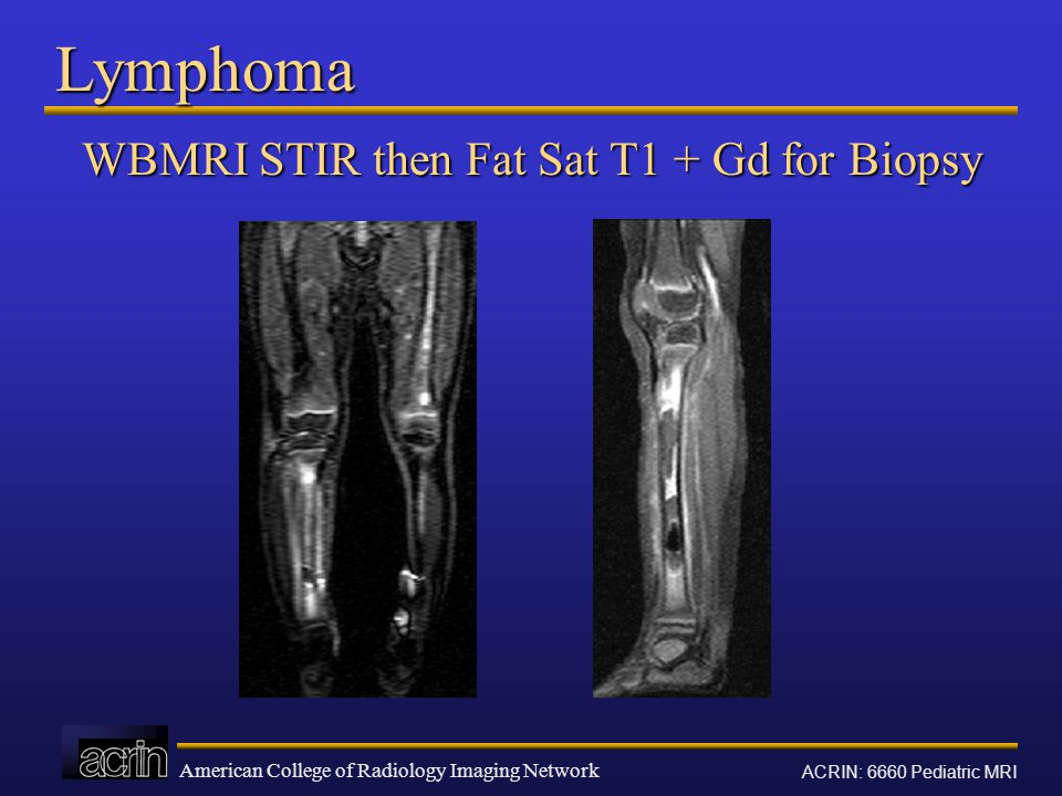 American College of Radiology Imaging Network ACRIN: 6660 Pediatric MRI Lymphoma WBMRI STIR then Fat Sat T1 + Gd for Biopsy