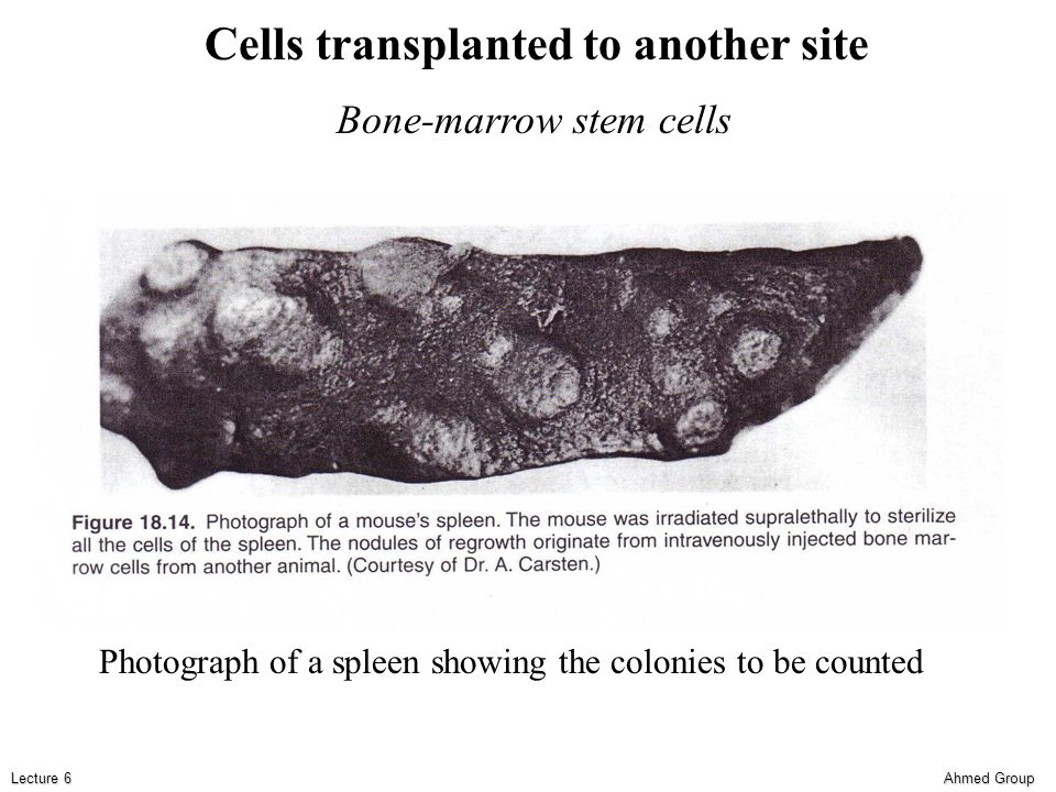 Ahmed Group Lecture 6 Cells transplanted to another site Bone-marrow stem cells Photograph of a spleen showing the colonies to be counted