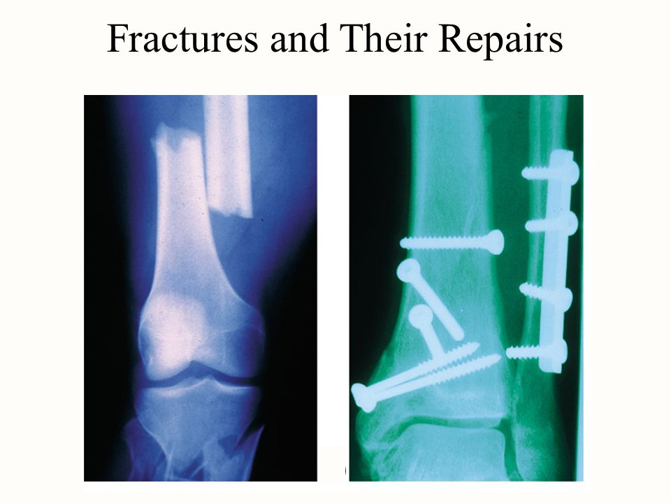 Fractures and Their Repairs