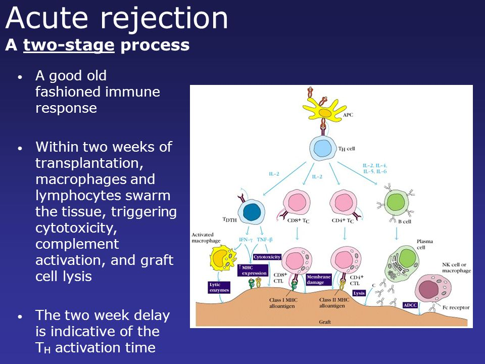 Acute rejection A two-stage process A good old fashioned immune response Within two weeks of transplantation, macrophages and lymphocytes swarm the ti