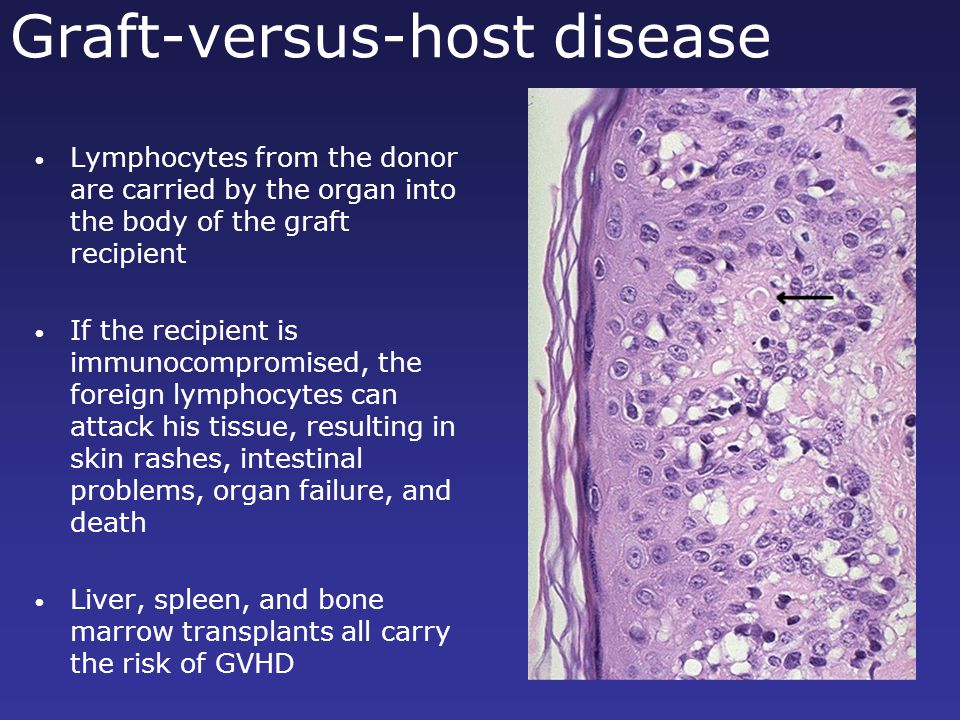 Graft-versus-host disease Lymphocytes from the donor are carried by the organ into the body of the graft recipient If the recipient is immunocompromis