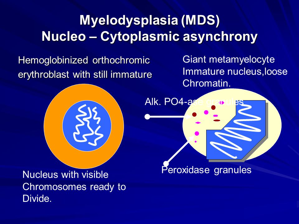 Myelodysplasia (MDS) Nucleo – Cytoplasmic asynchrony Hemoglobinized orthochromic erythroblast with still immature Nucleus with visible Chromosomes ready to Divide.