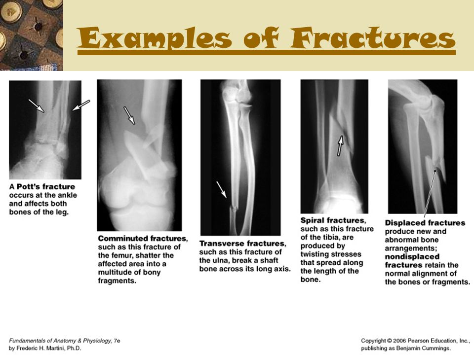 Examples of Fractures