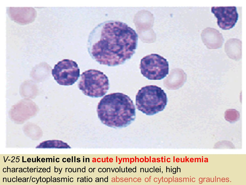 V-25 Leukemic cells in acute lymphoblastic leukemia characterized by round or convoluted nuclei, high nuclear/cytoplasmic ratio and absence of cytoplasmic graulnes.