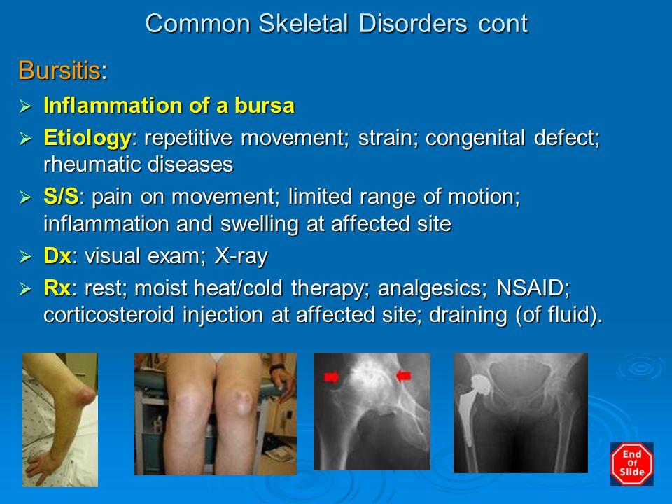 Common Skeletal Disorders cont Bursitis:  Inflammation of a bursa  Etiology: repetitive movement; strain; congenital defect; rheumatic diseases  S/