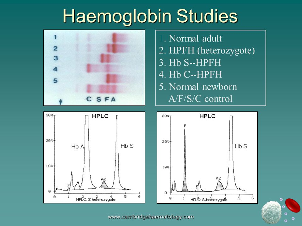 www.cambridgehaematology.com Haemoglobin Studies 1.