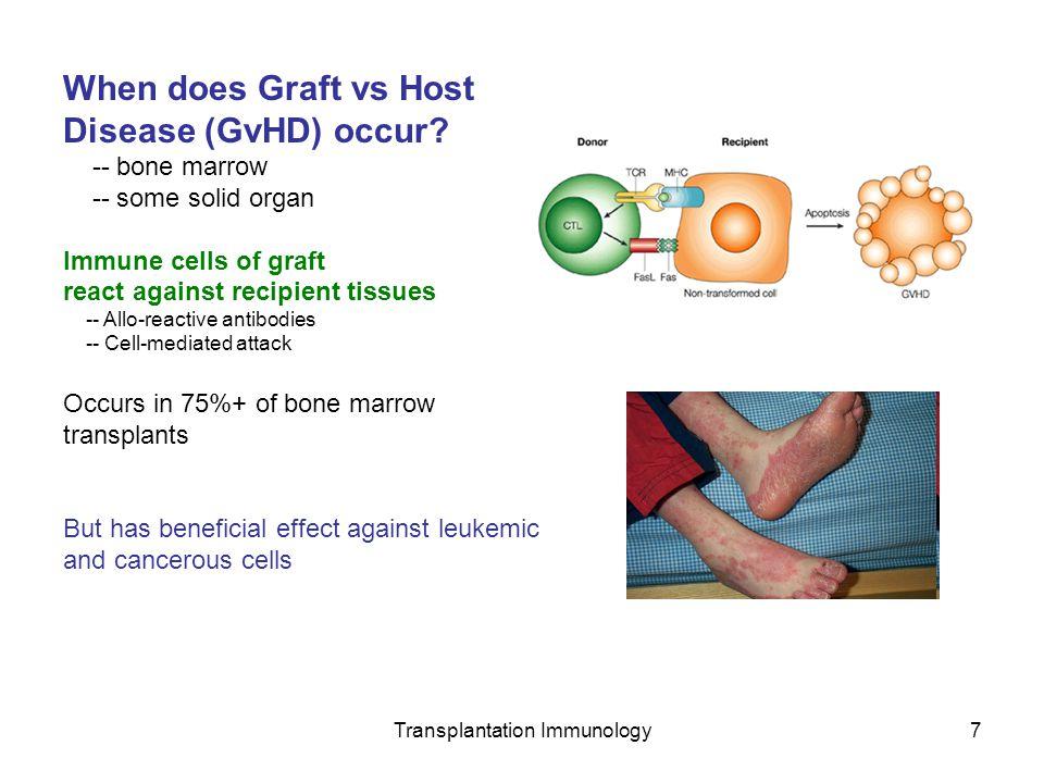 Transplantation Immunology7 When does Graft vs Host Disease (GvHD) occur? -- bone marrow -- some solid organ Immune cells of graft react against recip