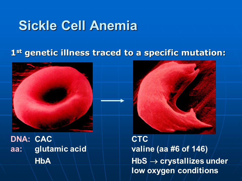 Sickle Cell Anemia 1 st genetic illness traced to a specific mutation: DNA: CAC CTC aa: glutamic acidvaline (aa #6 of 146) HbAHbS  crystallizes under