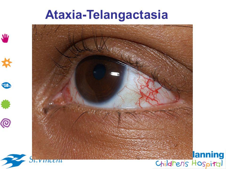 Ataxia-Telangactasia