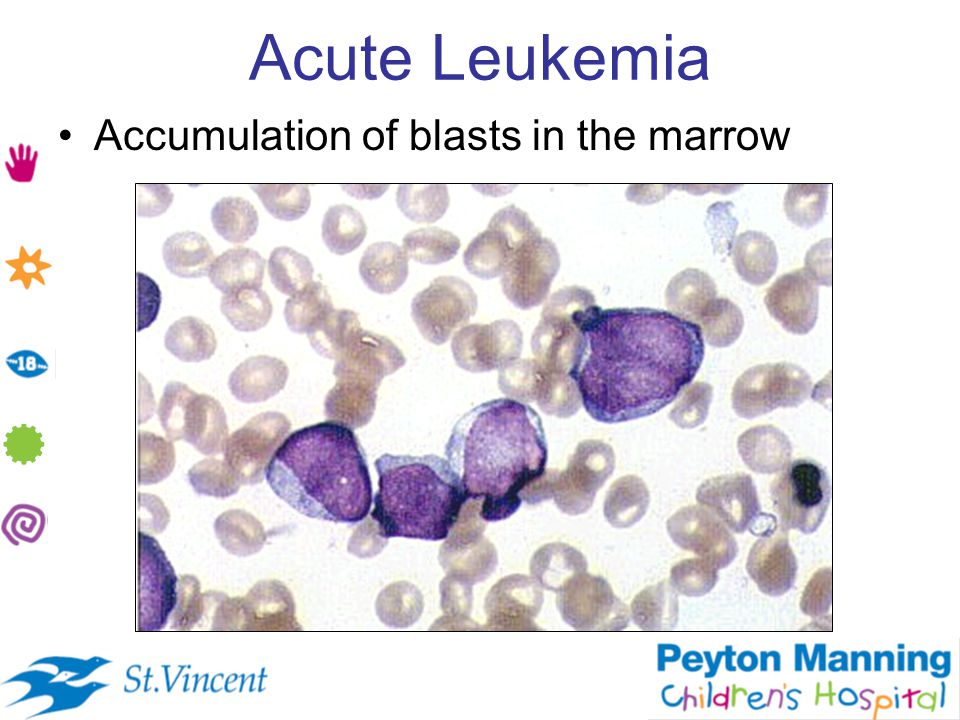 Acute Leukemia Accumulation of blasts in the marrow
