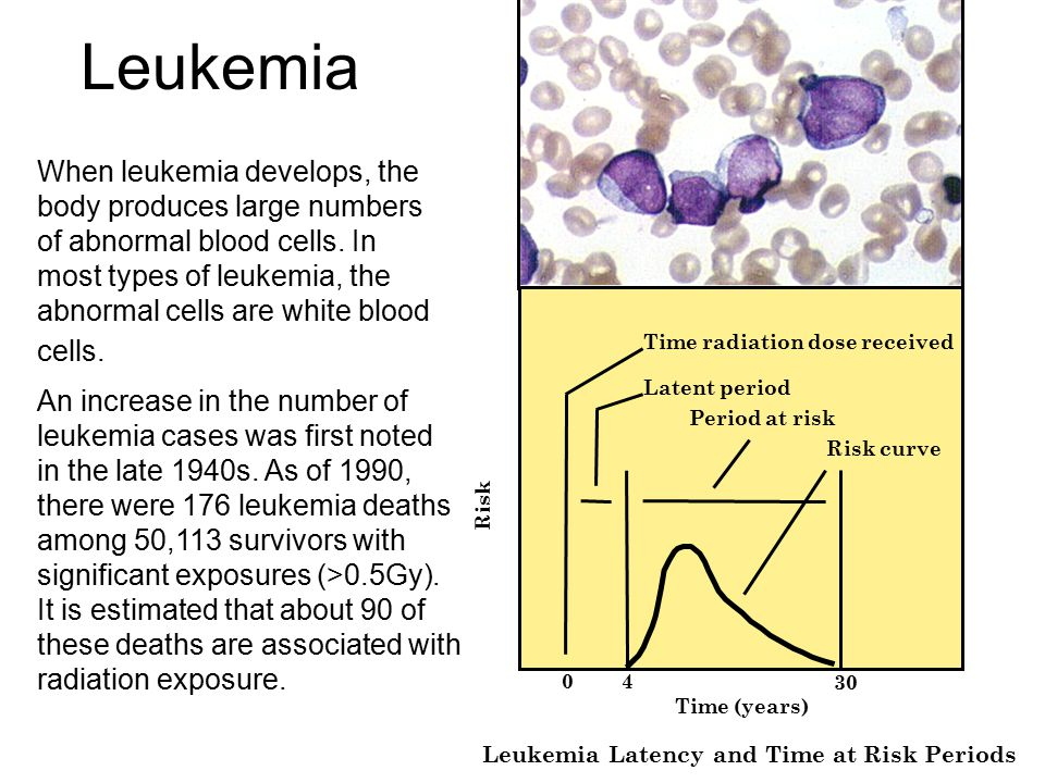 Leukemia – case of Sadako