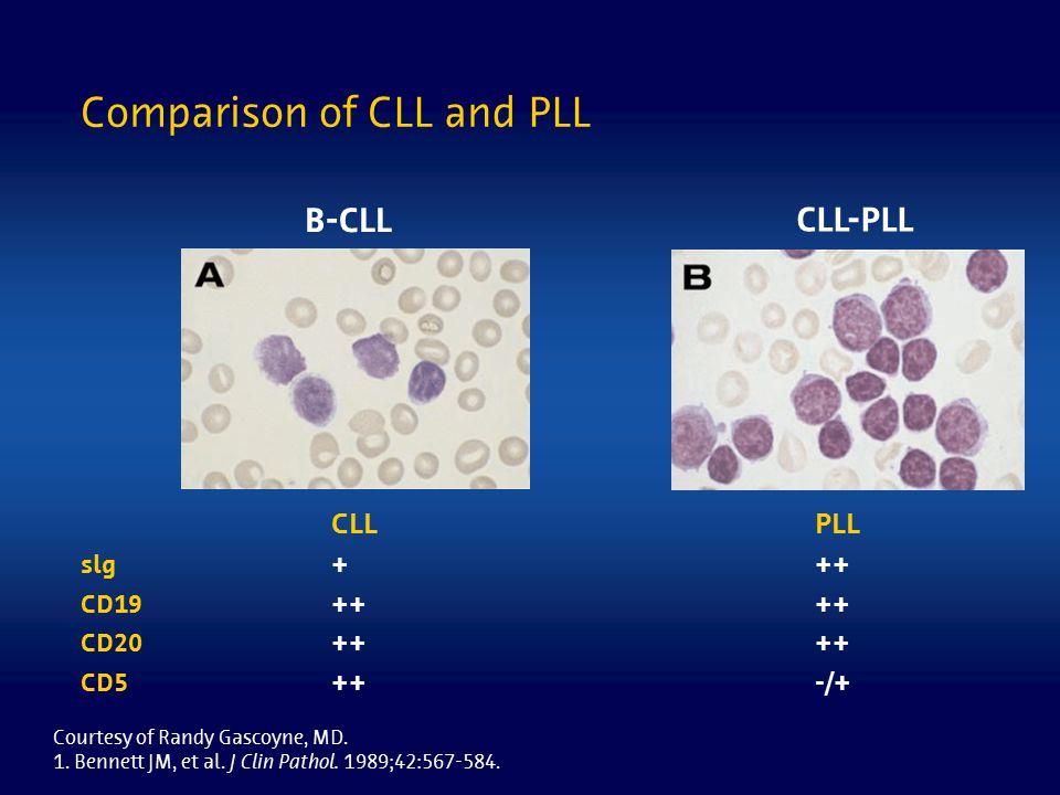 Comparison of CLL and PLL B-CLL CLL-PLL CLLPLL slg+++ CD19++ CD20++ CD5++-/+ Courtesy of Randy Gascoyne, MD. 1. Bennett JM, et al. J Clin Pathol. 1989