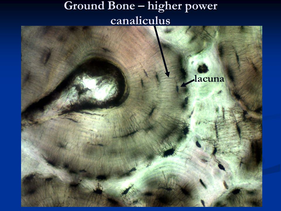 Ground Bone – higher power canaliculus lacuna