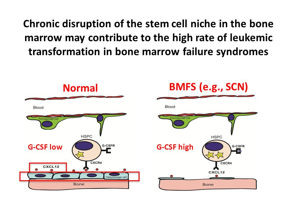 Chronic disruption of the stem cell niche in the bone marrow may contribute to the high rate of leukemic transformation in bone marrow failure syndrom