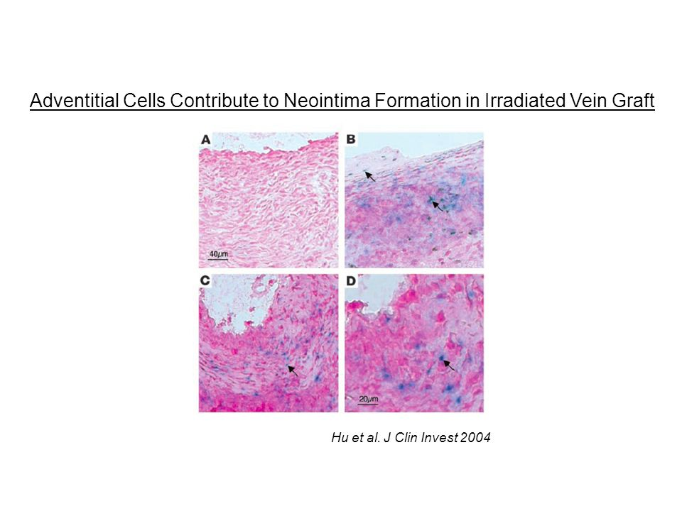 Hu et al. J Clin Invest 2004 Adventitial Cells Contribute to Neointima Formation in Irradiated Vein Graft