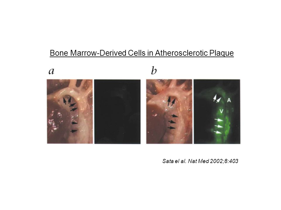 Sata el al. Nat Med 2002;8:403 Bone Marrow-Derived Cells in Atherosclerotic Plaque