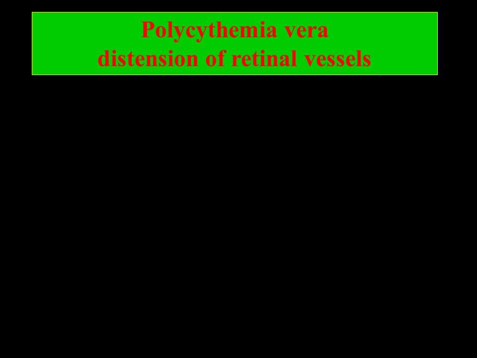 Polycythemia vera distension of retinal vessels