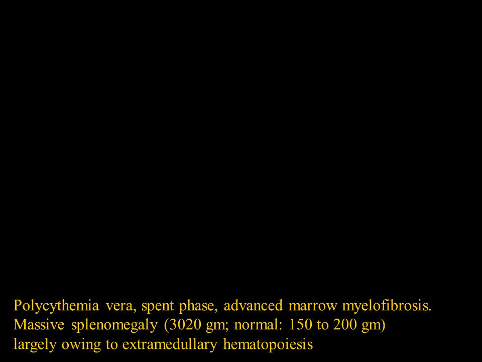 Polycythemia vera, spent phase, advanced marrow myelofibrosis. Massive splenomegaly (3020 gm; normal: 150 to 200 gm) largely owing to extramedullary h