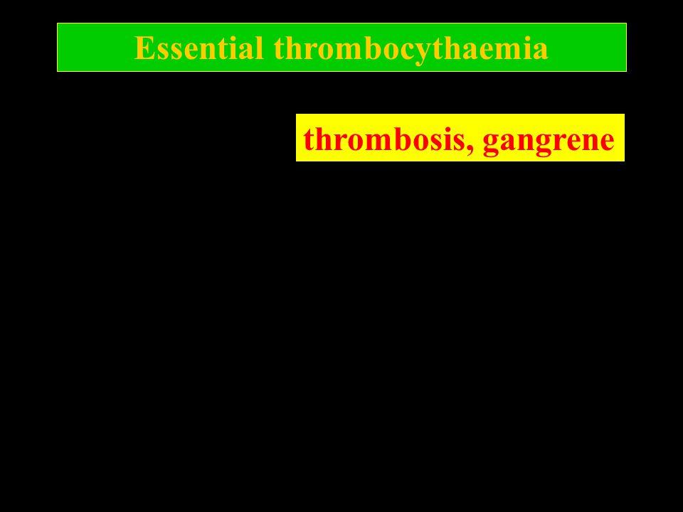 Essential thrombocythaemia thrombosis, gangrene
