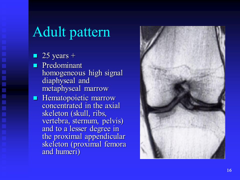 16 Adult pattern 25 years + 25 years + Predominant homogeneous high signal diaphyseal and metaphyseal marrow Predominant homogeneous high signal diaph