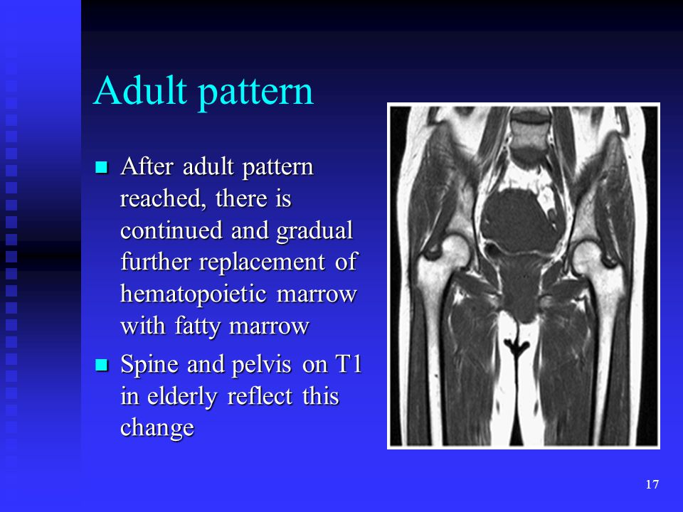 17 Adult pattern After adult pattern reached, there is continued and gradual further replacement of hematopoietic marrow with fatty marrow After adult