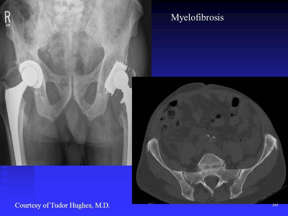 30 Courtesy of Tudor Hughes, M.D. Myelofibrosis