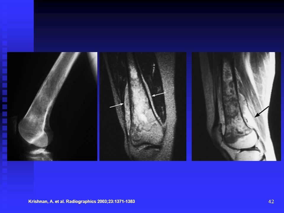 42 Krishnan, A. et al. Radiographics 2003;23:1371-1383
