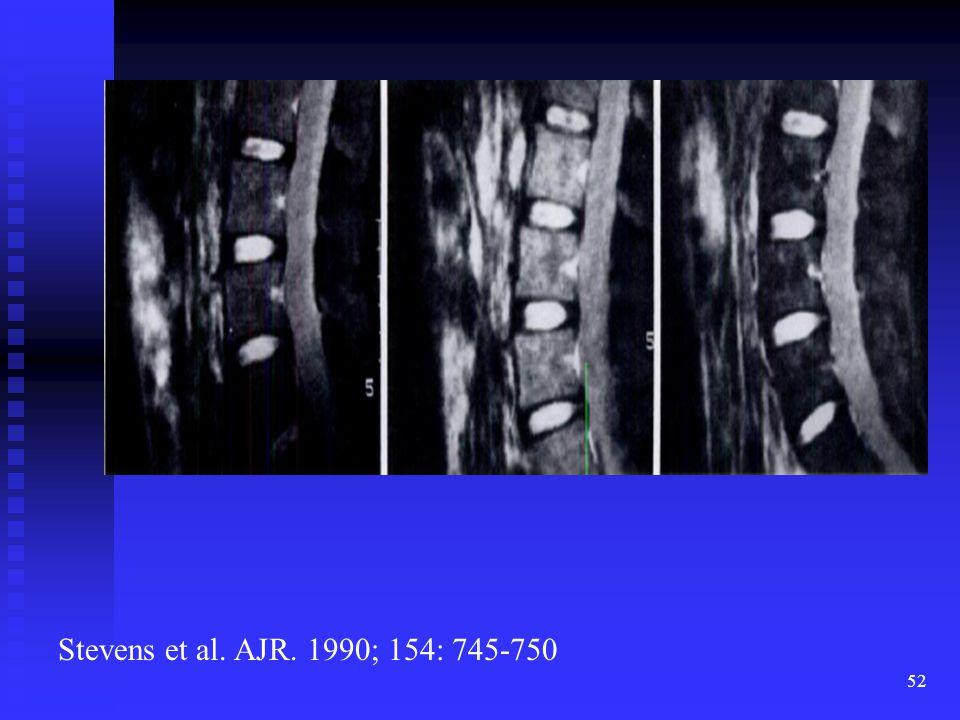 52 Stevens et al. AJR. 1990; 154: 745-750