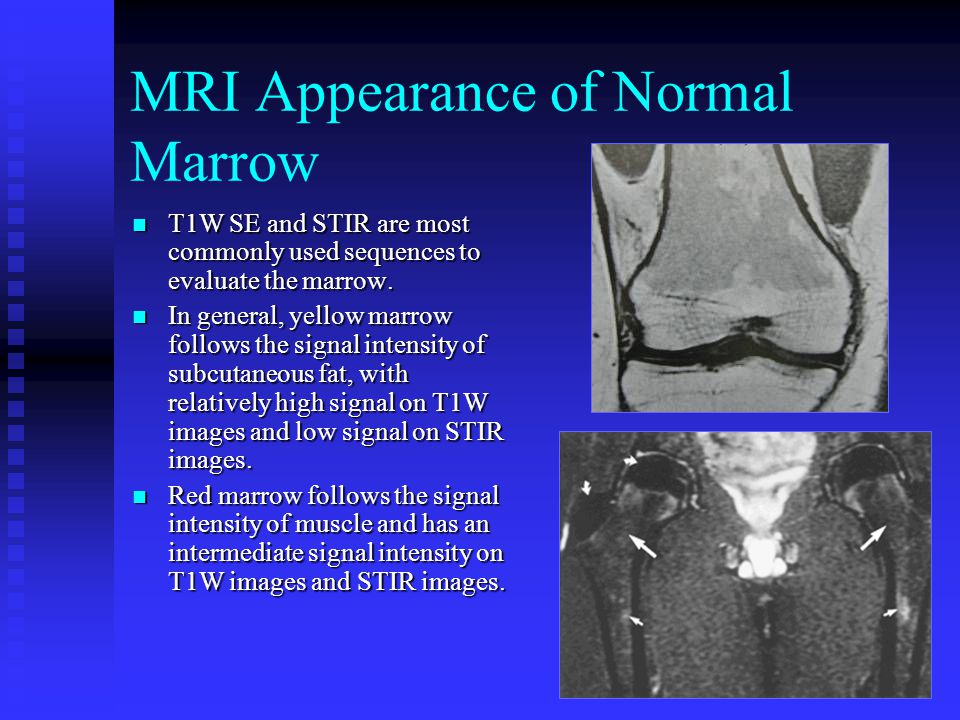 9 MRI Appearance of Normal Marrow T1W SE and STIR are most commonly used sequences to evaluate the marrow. T1W SE and STIR are most commonly used sequ