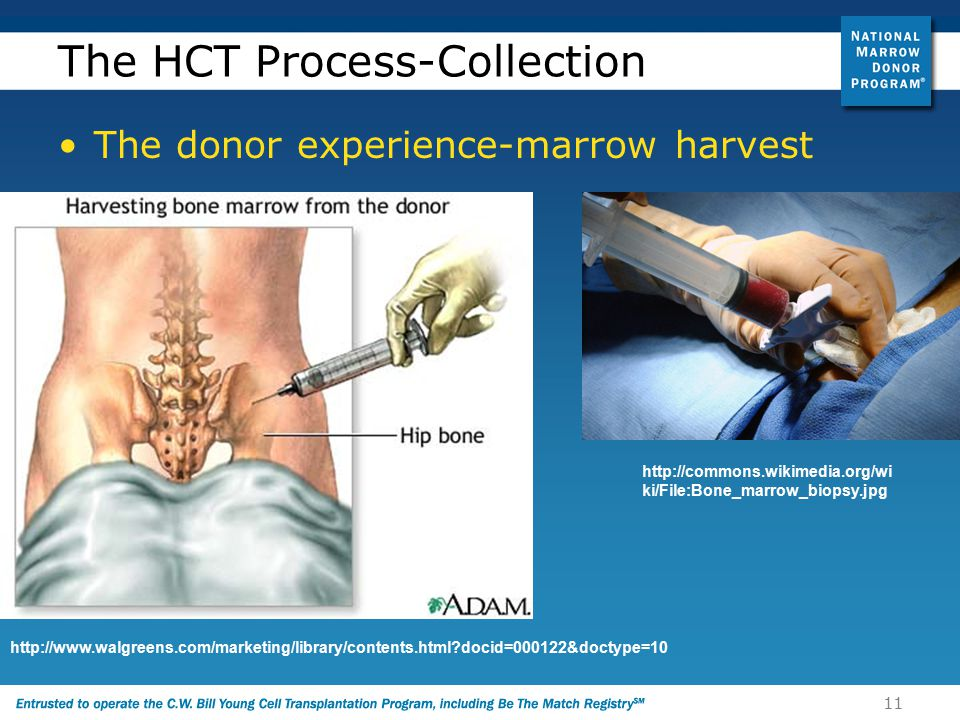 11 The HCT Process-Collection The donor experience-marrow harvest http://www.walgreens.com/marketing/library/contents.html docid=000122&doctype=10 http://commons.wikimedia.org/wi ki/File:Bone_marrow_biopsy.jpg