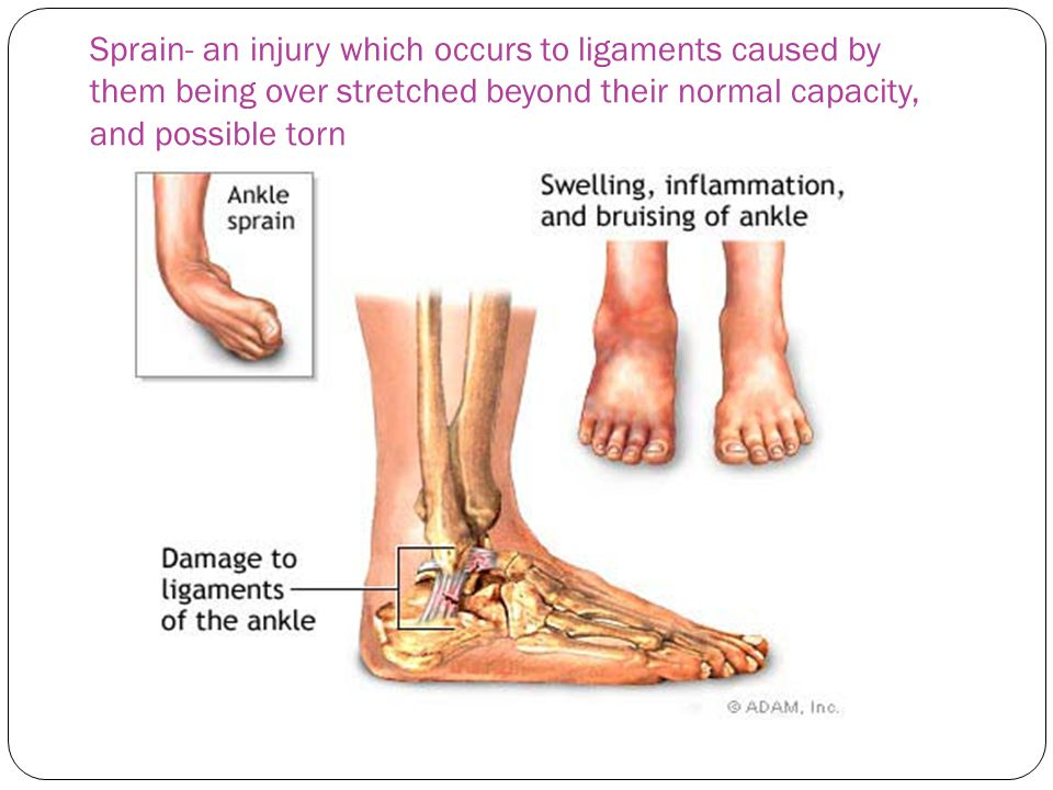Sprain- an injury which occurs to ligaments caused by them being over stretched beyond their normal capacity, and possible torn