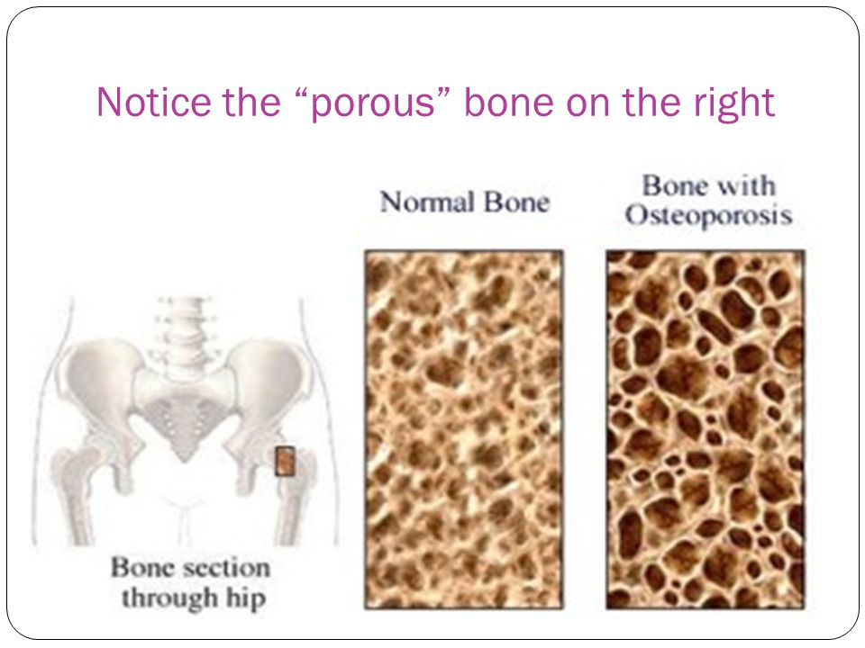 Notice the porous bone on the right