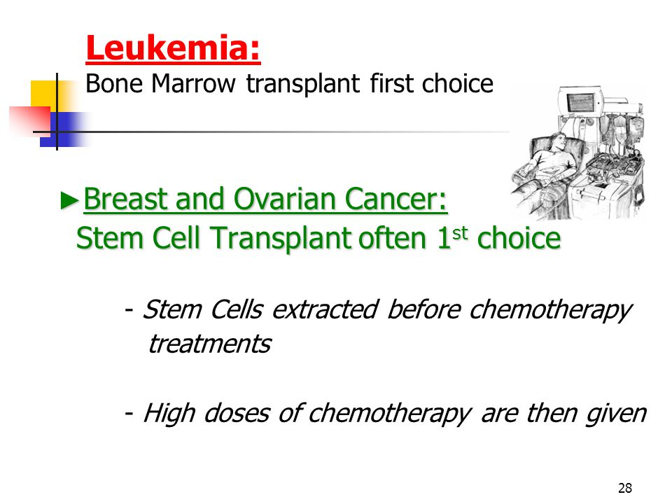 28 Leukemia: Bone Marrow transplant first choice ► Breast and Ovarian Cancer: Stem Cell Transplant often 1 st choice Stem Cell Transplant often 1 st choice - Stem Cells extracted before chemotherapy treatments - High doses of chemotherapy are then given
