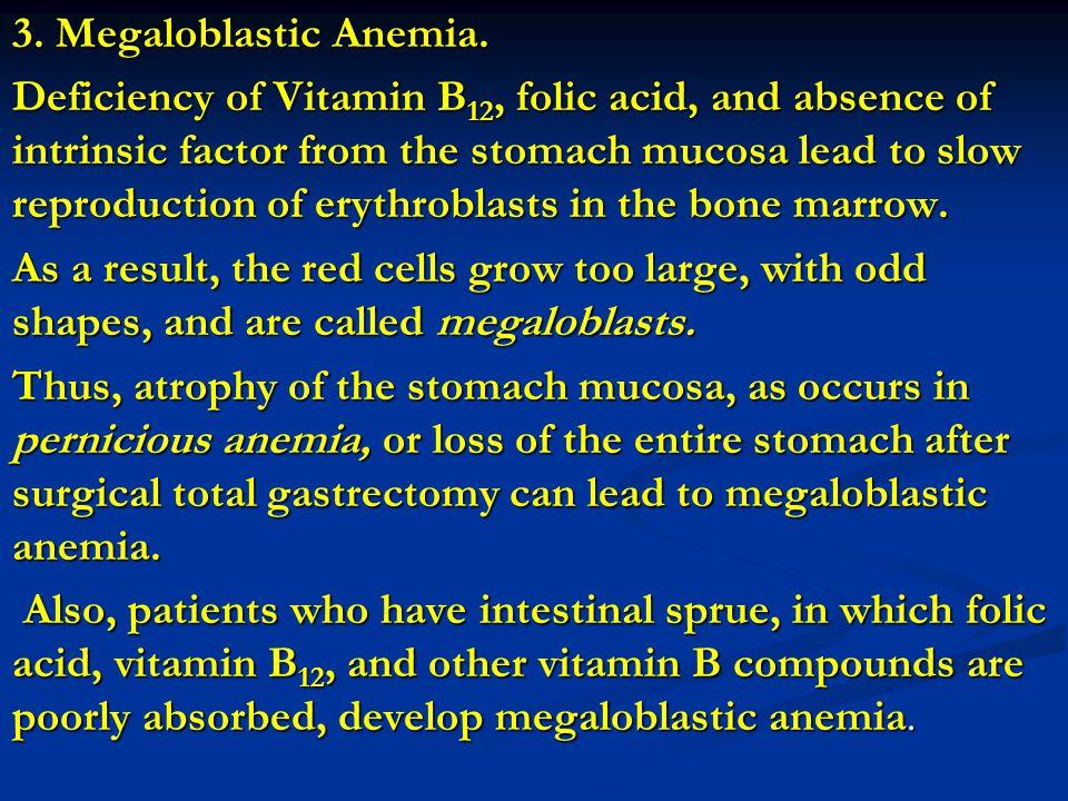 3. Megaloblastic Anemia.