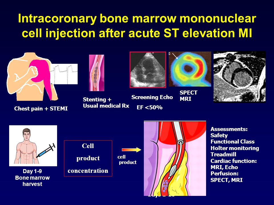 Chest pain + STEMI Stenting + Usual medical Rx Day 1-9 Bone marrow harvest Assessments: Safety Functional Class Holter monitoring Treadmill Cardiac fu