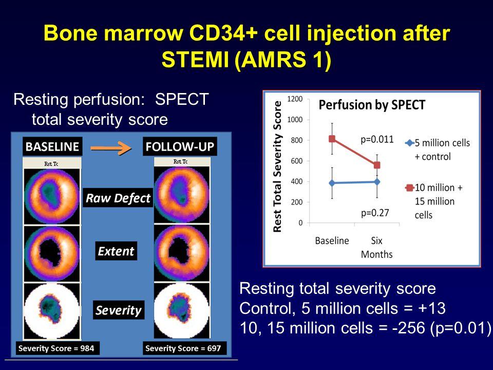 Resting perfusion: SPECT total severity score Resting total severity score Control, 5 million cells = +13 10, 15 million cells = -256 (p=0.01) Bone ma