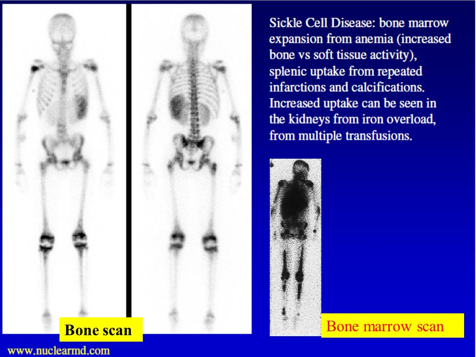 Osteomyelitis The term osteomyelitis literally means inflammation of bone and its marrow regardless of whether it is due to pyogenic organisms,tuberculosis,syphylis,virus, fungus,or presence of foreign body.