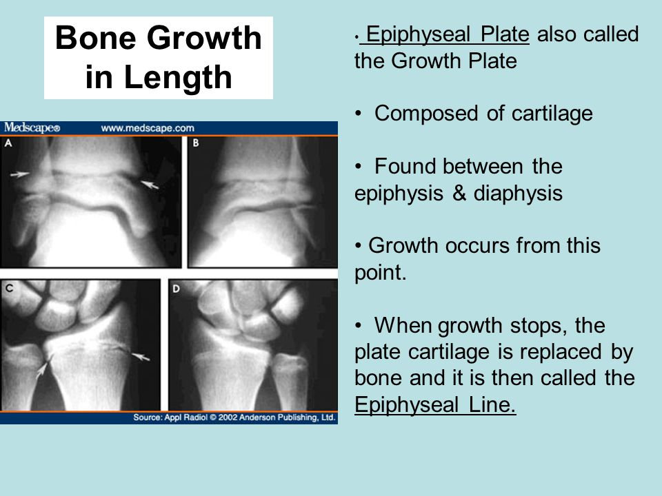 Bone Growth in Length Epiphyseal Plate also called the Growth Plate Composed of cartilage Found between the epiphysis & diaphysis Growth occurs from this point.