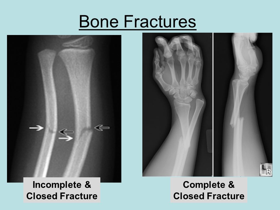 Bone Fractures Incomplete & Closed Fracture Complete & Closed Fracture