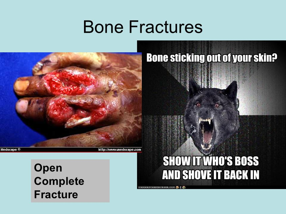 Bone Fractures Open Complete Fracture