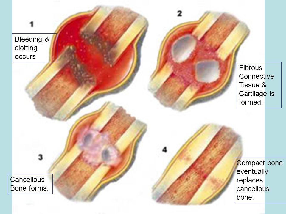 Bleeding & clotting occurs Fibrous Connective Tissue & Cartilage is formed. Cancellous Bone forms. Compact bone eventually replaces cancellous bone.