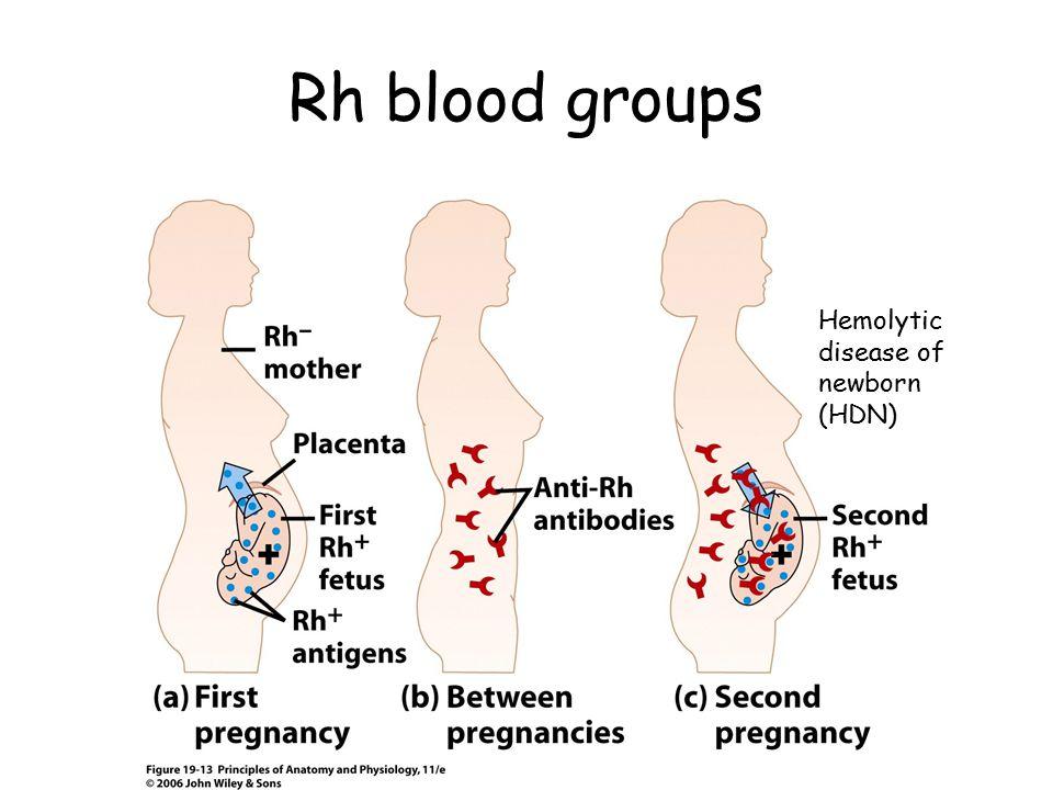 Rh blood groups Hemolytic disease of newborn (HDN)