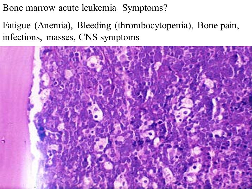 Bone marrow acute leukemia Symptoms.